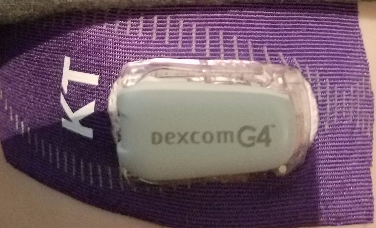 Dexcom: The Good, The Bad, and The Obsessive